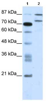 Western blot - Anti-Zinc finger protein 709 antibody (ab66389)