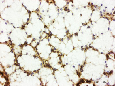 Immunohistochemistry (Formalin/PFA-fixed paraffin-embedded sections) - Anti-CD82 antibody (ab66400)
