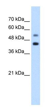 Western blot - Anti-GTPBP2 antibody (ab66519)