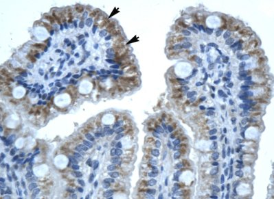 Immunohistochemistry (Formalin/PFA-fixed paraffin-embedded sections) - Anti-Connexin 32 / GJB1 antibody (ab66613)