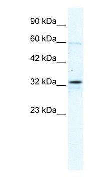 Western blot - Anti-Connexin 32 / GJB1 antibody (ab66613)