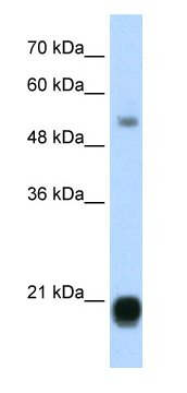 Western blot - Anti-HP1 gamma antibody (ab66617)