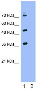 Western blot - Anti-Keap1 antibody (ab66620)