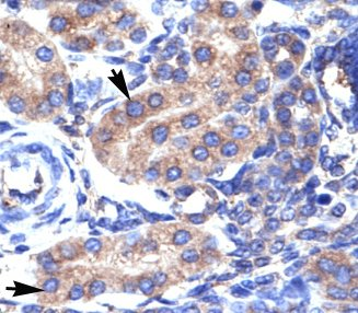 Immunohistochemistry (Formalin/PFA-fixed paraffin-embedded sections) - Anti-KCNAB3 antibody (ab66625)