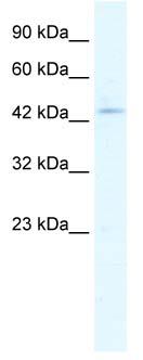 Western blot - Anti-CLIC5 antibody (ab66630)