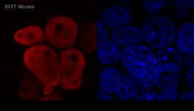 Immunocytochemistry/ Immunofluorescence - Anti-HIV1 integrase antibody [IN-2] (ab66645)