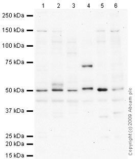 Western blot - Anti-HYAL2 antibody (ab66653)