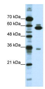 Western blot - Anti-ZNF446 antibody (ab66657)