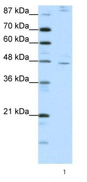 Western blot - Anti-NR2F2 antibody (ab66662)