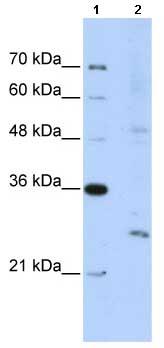 Western blot - Anti-EXOSC4 antibody (ab66672)