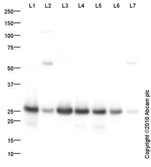 Western blot - Anti-Serum Amyloid P antibody (ab66715)
