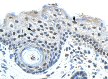 Immunohistochemistry (Formalin/PFA-fixed paraffin-embedded sections) - Anti-SAP155 antibody (ab66774)