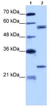 Western blot - Anti-CPNE1 antibody (ab66898)