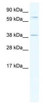 Western blot - Anti-Mohawk homeobox antibody (ab66939)