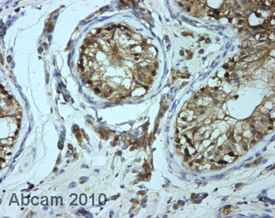 Immunohistochemistry (Formalin/PFA-fixed paraffin-embedded sections) - Anti-BTF3 antibody (ab66940)