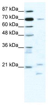 Western blot - Anti-BTF3 antibody (ab66940)