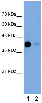 Western blot - Anti-TGFBI antibody (ab66957)