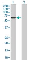 Western blot - Anti-PHF17 antibody (ab66968)