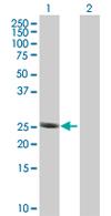Western blot - Anti-RPL29 antibody (ab67196)