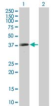 Western blot - Anti-KATNA1 antibody (ab67206)
