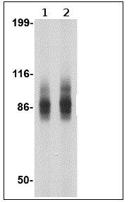 Western blot - Anti-SP110 antibody (ab67221)