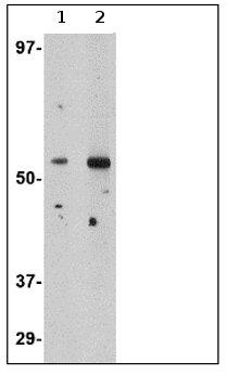 Western blot - Anti-Plxdc2 antibody (ab67225)