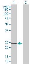 Western blot - Anti-RAB37 antibody (ab67267)