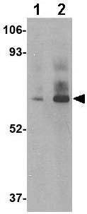 Western blot - Anti-DHX58 antibody (ab67270)