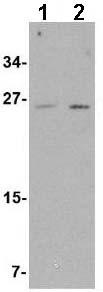 Western blot - Anti-ARMET antibody (ab67271)