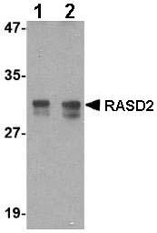 Western blot - Anti-RASD2 antibody (ab67277)