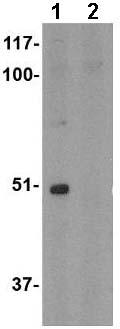 Western blot - Anti-FNBP1L antibody (ab67310)