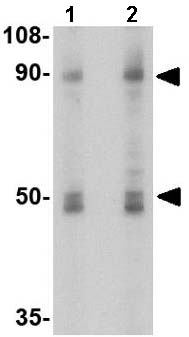 Western blot - Anti-Sodium / Hydrogen Exchanger 1 antibody (ab67314)