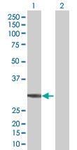 Western blot - Anti-CECR1 antibody (ab67380)