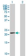 Western blot - Anti-DDIT4L antibody (ab67431)