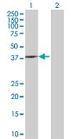 Western blot - Anti-BHMT2 antibody (ab67469)