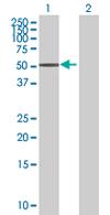 Western blot - Anti-B4GALT3 antibody (ab67476)