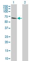 Western blot - Anti-TULP3 antibody (ab67624)