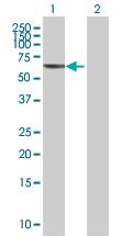 Western blot - Anti-PLA2G4C antibody (ab67649)