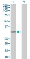 Western blot - Anti-EXOSC3 antibody (ab67661)