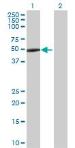Western blot - Anti-SKIP antibody (ab67715)