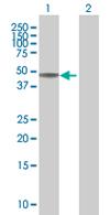 Western blot - Anti-CDC42EP4 antibody (ab67780)