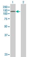 Western blot - Anti-DGKZ antibody (ab67791)