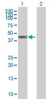 Western blot - Anti-PHF20L1 antibody (ab67796)