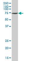 Western blot - Anti-SAMHD1 antibody (ab67820)