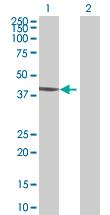 Western blot - Anti-JAML antibody (ab67843)