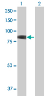 Western blot - Methylmalonyl Coenzyme A mutase antibody (ab67869)