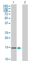 Western blot - Anti-MRPS11 antibody (ab67893)