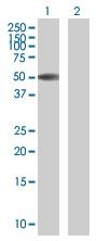 Western blot - Anti-ZBTB12 antibody (ab67939)