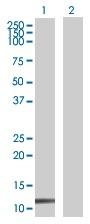 Western blot - Anti-ZNF343 antibody (ab67940)