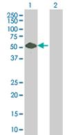 Western blot - Anti-TRK fused gene antibody (ab68002)